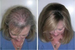 účinky liečby senso duo u žien