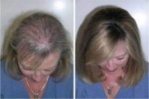 effects of the treatment senso duo in women
