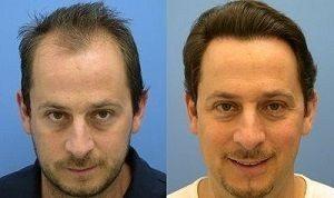 effetti del trattamento negli uomini senso duo
