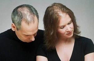 senso duo - cure for hair loss