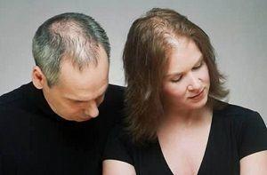 senso duo - išgydyti plaukų slinkimo