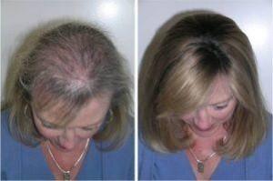 virkninger af behandlingen hos kvinder senso duo