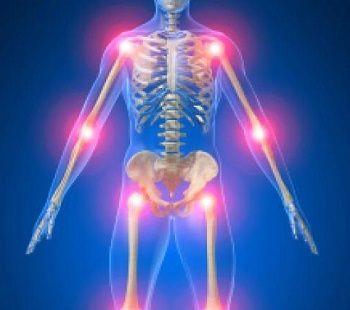 flexa plus pentru artrita