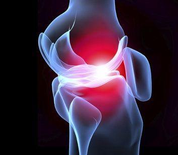 flexa plus problémy s kĺbmi