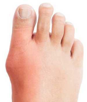 hallu motion på skæve fingre