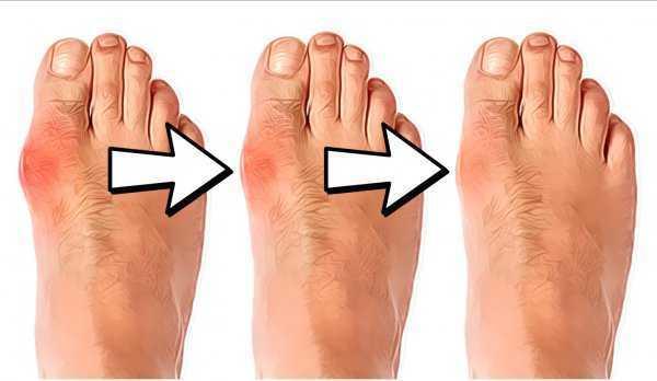ietekme lencēm hallu motion