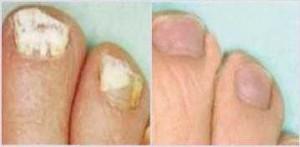 efekty stosowania soli verlaven