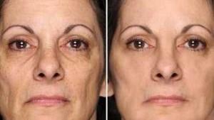 gli effetti dell'applicazione della crema lefery day