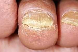 skinetrin 2 atletskog stopala onychomycosis