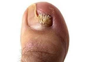 skinetrin 2 za onychomycosis and atletsko stopalo