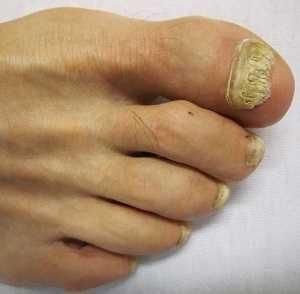 verlaven na grzybicę paznokci