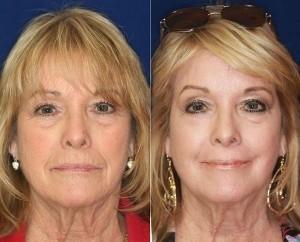 Perle Bleue effekter hos kvinner