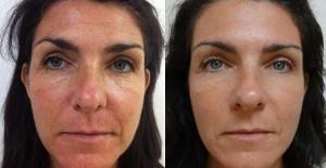 effetti dell'applicazione donne crema Perle bleue