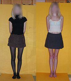 Účinky náramok kneeactiveplus žien