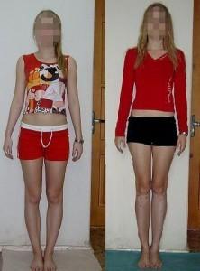 Auswirkungen von knee active plus Frauen