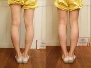 Effets des bandes knee active plus
