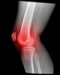 articulatio pro proti bolesti artritidy