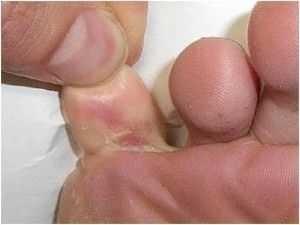 Skinetrin gegen Mykose