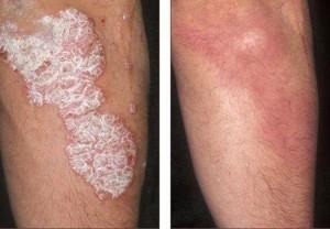 Efectos de uso de la crema Psorilax.