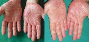 Efecto de la crema Psorilax.