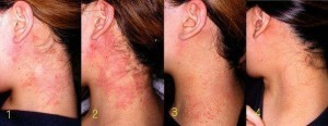 Psorilax dermatite atopica