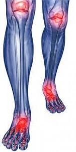 Motion Free kuracja przeciwbólowa na stawy 151x300 Motion Free   parere sulla preparazione del dolore articolare