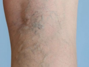 Varivobooster antidotum na żylaki 300x225 Varicobooster   ý kiến về chuẩn bị tĩnh mạch giãn tĩnh mạch