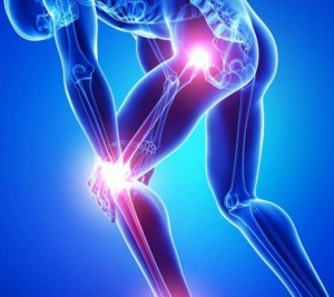 bóle stawów częsty problem dzisiejszych ludzi