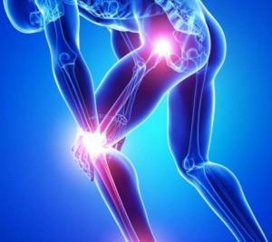 bóle stawów częsty problem dzisiejszych ludzi 300x267 Motion Free   parecer sobre a preparação para dor nas articulações