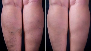 efekty kuracji Varikosette 300x169 Varikosette   γνώμη σχετικά με την καινοτόμο κρέμα φλεβίτιδας