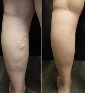 efekty kuracji przeciw żylakom Varicobooster 274x300 Varicobooster   ความเห็นเกี่ยวกับการเตรียมหลอดเลือดดำโป่งขด