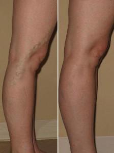 efekty smarowania nóg kremem Varyforte 224x300 Varyforte   ความเห็นเกี่ยวกับการเตรียมหลอดเลือดดำโป่งขดใหม่