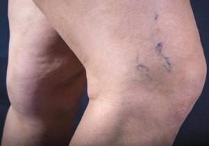 leczenie żylaków 300x209 Varikosette   ความคิดเห็นเกี่ยวกับนวัตกรรมหลอดเลือดดำโป่งขด