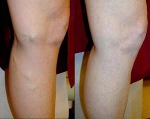 leczenie żylaków Varyforte 300x238 Varyforte   opinione su una nuova preparazione delle vene varicose