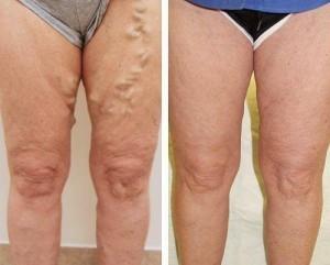 leczenie wystających żylaków kuracja Varicobooster 300x241 Varicobooster: opinión sobre la preparación de la vena varicosa