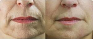 poprawa jakości skóry dzięki Goji Cream 300x127 Goji cream   γνώμη σχετικά με την κρέμα κατά των ρυτίδων