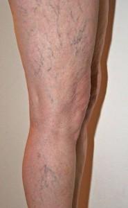 problem żylaków na nogach