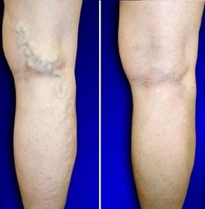 rezultaty leczenia żylaków Varikosette