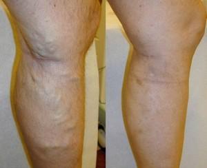 wyniki kuracji leczniczej Varikosette 300x244 Varikosette   γνώμη σχετικά με την καινοτόμο κρέμα φλεβίτιδας