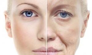 zmarszczki u kobiet 300x180 Goji cream   мнение за крем против бръчки